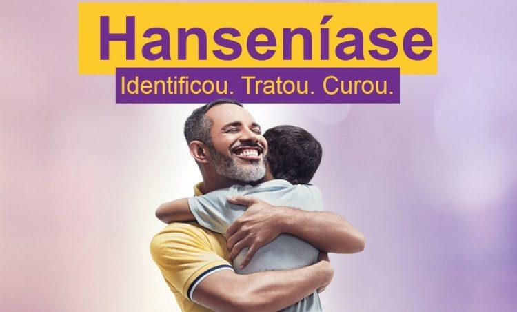 Janeiro Roxo: Conscientização no combate à hanseníase é realizado neste mês